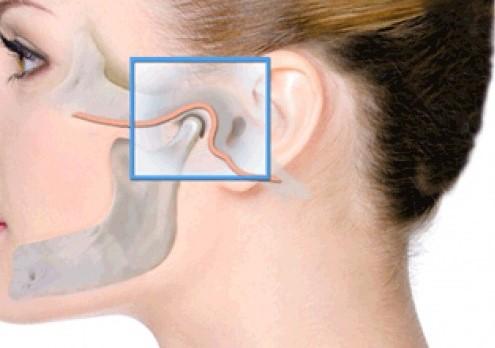 afectiunile-articulatiei-temporo-mandibulare